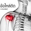 โรคข้อไหล่ติด-frozen-shoulder